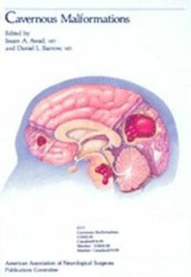 Cavernous Malformations (Hardback)