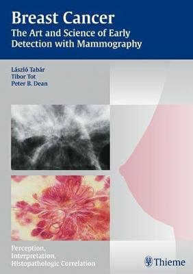 Breast Cancer: The Art and Science of Early Detection with Mammography - Tabar Mammo (Hardback)