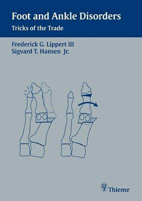Foot and Ankle Disorders: Tricks of the Trade (Paperback)
