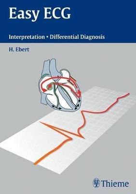 Easy ECG: Interpretation Differential Diagnoses (Paperback)