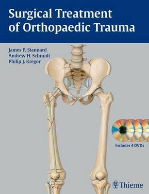 Surgical Treatment of Orthopaedic Trauma (Hardback)
