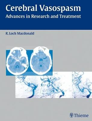 Cerebral Vasospasm: Advances in Research and Treatment (Hardback)