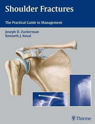 Shoulder Fractures: The Practical Guide to Management (Hardback)