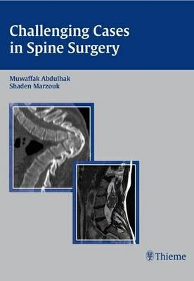 Challenging Cases in Spine Surgery (Hardback)