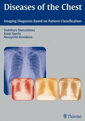 Diseases of the Chest: Imaging Diagnosis Based on Pattern Classification (Hardback)
