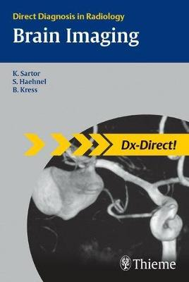 Brain Imaging: Direct Diagnosis in Radiology (Paperback)