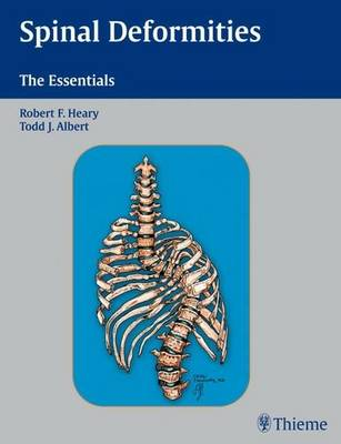 Spinal Deformities: The Essentials (Hardback)