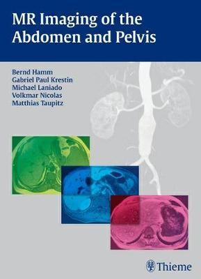 MR Imaging of the Abdomen and Pelvis (Hardback)