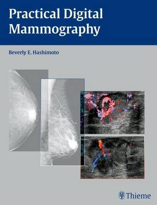 Practical Digital Mammography (Hardback)