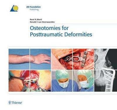 Osteotomies for Posttraumatic Deformities - AO-Publishing (Hardback)