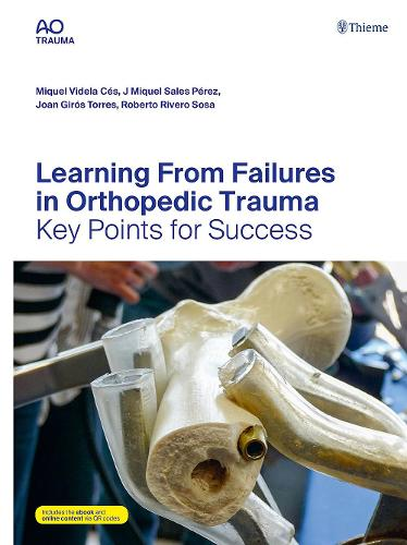 Learning From Failures in Orthopedic Trauma: Key Points for Success (Hardback)