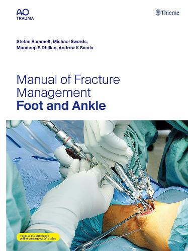 Manual of Fracture Management - Foot and Ankle (Hardback)
