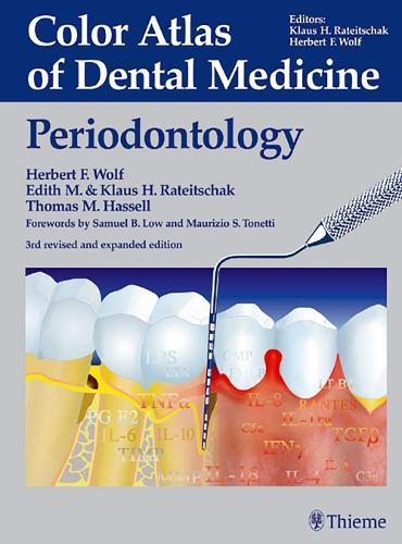 Periodontology - Color atlas dent med (Hardback)