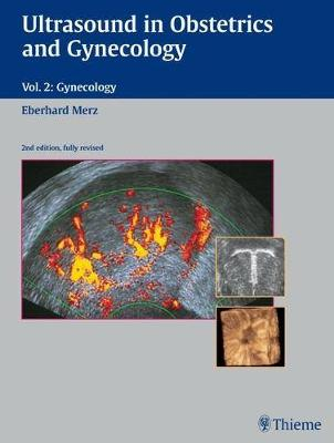 Ultrasound in Obstetrics and Gynecology: Ultrasound in Obstetrics and Gynecology Gynecology Volume 2 (Hardback)