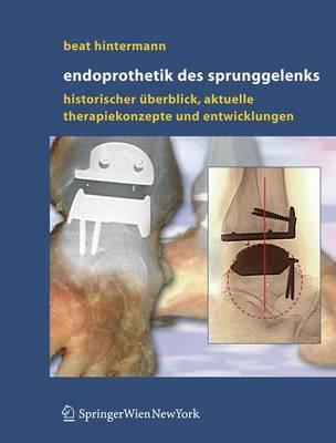 Endoprothetik DES Sprunggelenks: Historischer Uberblick, Aktuelle Therapiekonzepte Und Entwicklungen (Book)