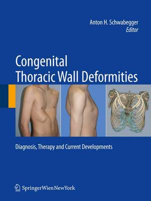 Congenital Thoracic Wall Deformities: Diagnosis, Therapy and Current Developments (Hardback)