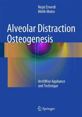 Alveolar Distraction Osteogenesis: ArchWise Appliance and Technique (Hardback)