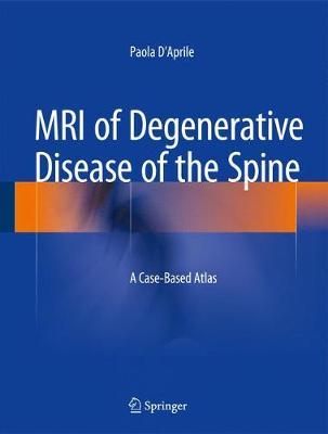 MRI of Degenerative Disease of the Spine: A Case-Based Atlas (Hardback)