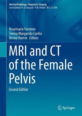 MRI and CT of the Female Pelvis - Diagnostic Imaging (Hardback)