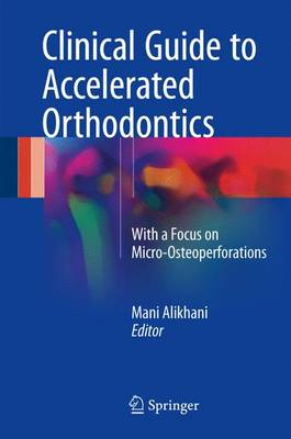 Clinical Guide to Accelerated Orthodontics: With a Focus on Micro-Osteoperforations (Hardback)
