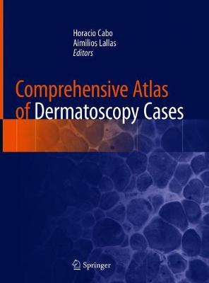 Comprehensive Atlas of Dermatoscopy Cases (Hardback)
