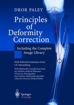 Principles of Deformity Correction: Including the Complete Image Library (CD-ROM)