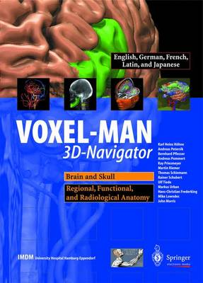 VOXEL-MAN 3D-navigator: Brain and Skull, Regional, Functional and Radiological Anatomy: Brain and Skull, Regional, Functional, and Radiological Anatomy (CD-ROM)