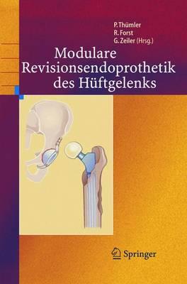 Modulare Revisionsendoprothetik Des Huftgelenks (Hardback)