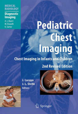 Pediatric Chest Imaging: Chest Imaging in Infants and Children - Medical Radiology / Diagnostic Imaging (Hardback)