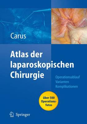 Atlas Laparoskopische Chirurgie (Book)