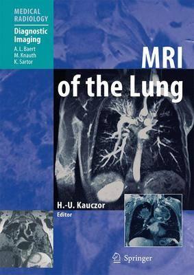 MRI of the Lung - Medical Radiology / Diagnostic Imaging (Hardback)