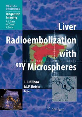 Liver Radioembolization with 90y Microspheres - Medical Radiology / Diagnostic Imaging (Hardback)