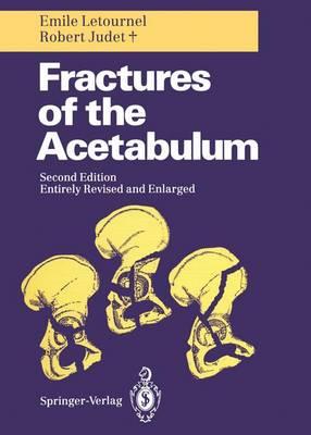 Fractures of the Acetabulum (Hardback)