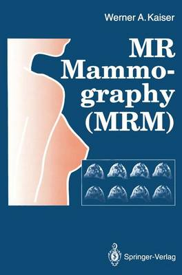MR Mammography (MRM) (Hardback)