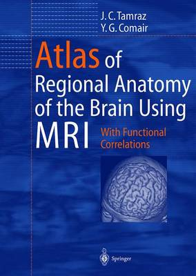 Atlas of Regional Anatomy of the Brain Using Mri: With Clinical and Functional Correlations (Hardback)