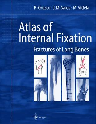Atlas of Internal Fixation: Fracture of Long Bones : Classification, Statistical Analysis, Technique, Radiology (Hardback)