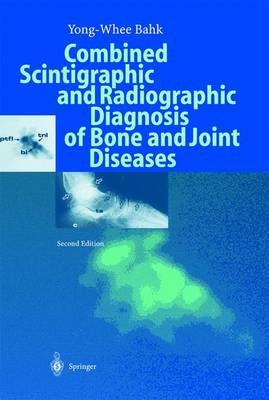 Combined Scintigraphic and Radiographic Diagnosis of Bone and Joint Diseases (Hardback)
