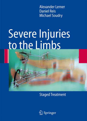 Severe Injuries to the Limbs: Staged Treatment (Hardback)