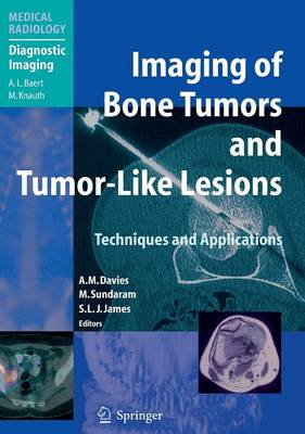 Imaging of Bone Tumors and Tumor-Like Lesions: Techniques and Applications - Medical Radiology (Hardback)