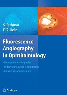 Fluorescence Angiography in Ophthalmology (Hardback)