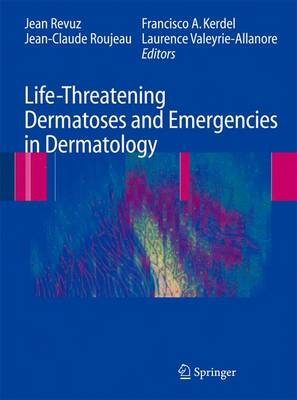 Life-Threatening Dermatoses and Emergencies in Dermatology (Hardback)