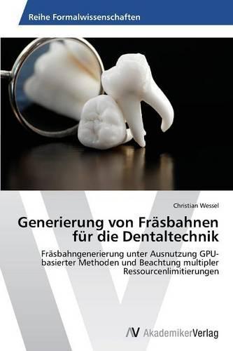 Generierung Von Frasbahnen Fur Die Dentaltechnik (Paperback)