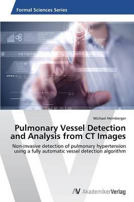 Pulmonary Vessel Detection and Analysis from CT Images (Paperback)