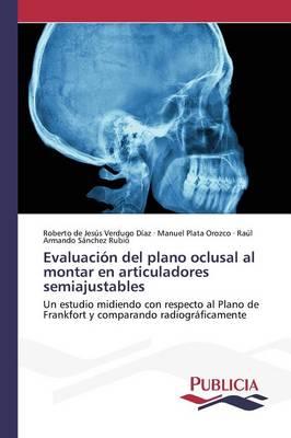 Evaluacion del Plano Oclusal Al Montar En Articuladores Semiajustables (Paperback)