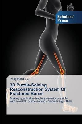3D Puzzle-Solving Resconstruction System of Fractured Bones (Paperback)
