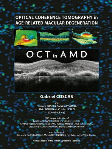 Optical Coherence Tomography in Age Related Macular Degeneration (Hardback)