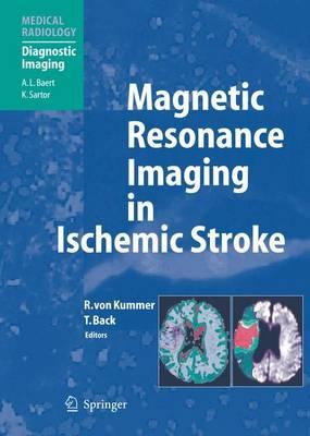 Magnetic Resonance Imaging in Ischemic Stroke - Medical Radiology (Paperback)