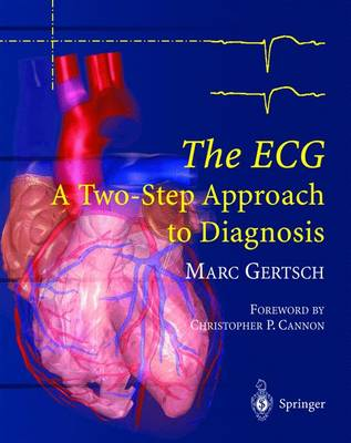 The ECG: A Two-Step Approach to Diagnosis (Paperback)