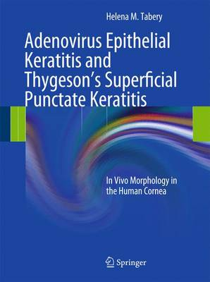 Adenovirus Epithelial Keratitis and Thygeson's Superficial Punctate Keratitis: In Vivo Morphology in the Human Cornea (Hardback)