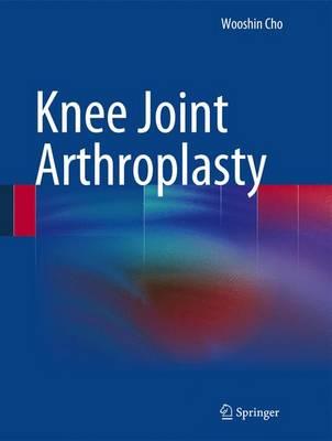 Knee Joint Arthroplasty (Hardback)
